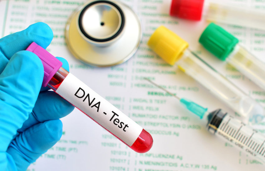Vaterschaftstest per DNA Analyse